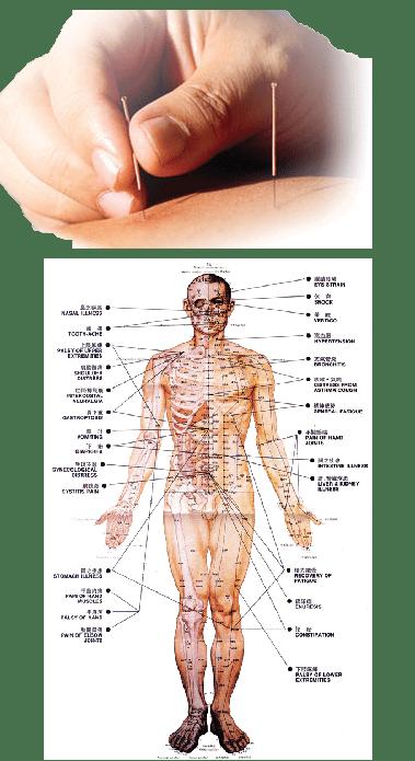 akupunktuurs1