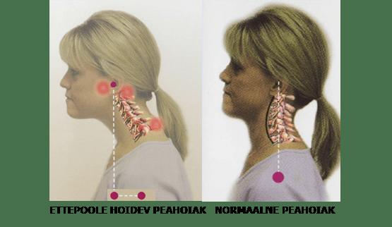 nutikael vs normaalne kael