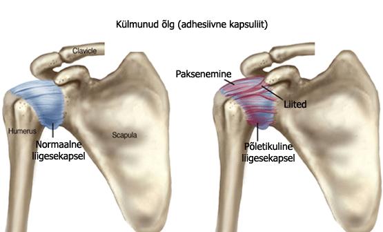 adhesiivne-kapsuliit