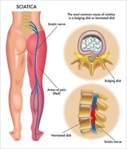 Istmikunärv ja kiirguva valu ala