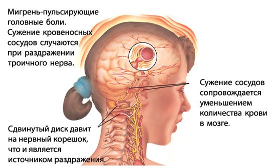 migrainerus