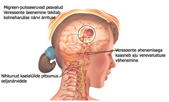 migreen